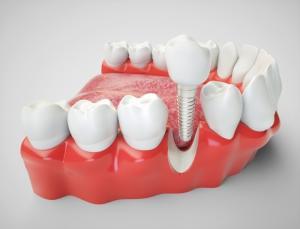 В Москве увеличилось количество запросов на имплантацию зубов