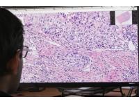 Philips и PathAI объединяют усилия для помощи врачам в диагностике рака груди
