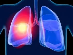 Исследование III фазы продемонстрировало преимущество препарата Алеценза в первой линии терапии при определенном типе рака легкого