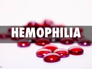 Положительные результаты клинического исследования III фазы препарата эмицизумаб компании «Рош» опубликованы в журнале The New England Journal of Medicine