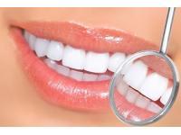Профессиональная чистка и полировка зубов: осенняя акция стоматологии «Зууб»