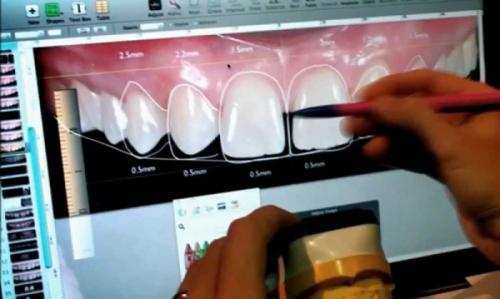 Инновационная DSD-технология по компьютерному моделированию улыбки применяется в медцентре «New Line Dent»