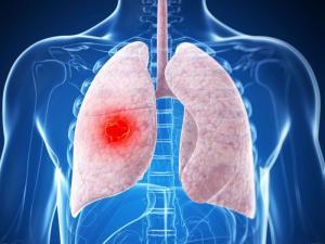 Данные наблюдения III фазы показали, что препарат Алеценза компании «Рош» помог продлить выживаемость