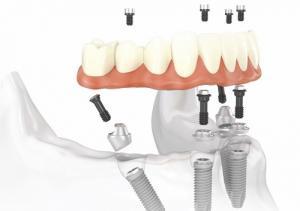Протокол All-on-4: имплантация в стоматологическом центре «Зууб»