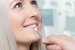 Услугу по установлению виниров реализует стоматология «32 Дент»