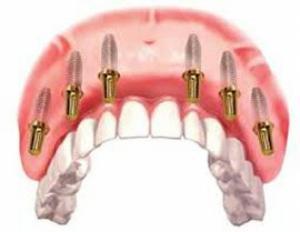 «All-on-6»: новая услуга восстановления зубов в стоматологии «Зууб»