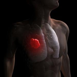 Европейская комиссия одобрила препарат Тецентрик в комбинации с препаратом Авастин и химиотерапией для первой линии терапии пациентов с неплоскоклеточным типом метастатического рака лёгкого