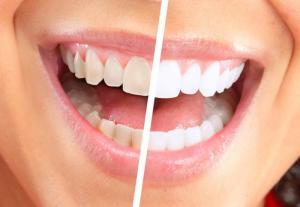Что из себя представляет отбеливание зубов