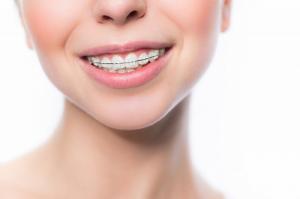 Акцию по установке сапфировых брекетов запускает стоматологический центр «Зууб»