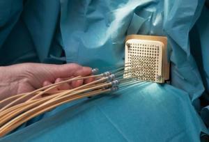 Здоровье женщины: новые возможности медицины