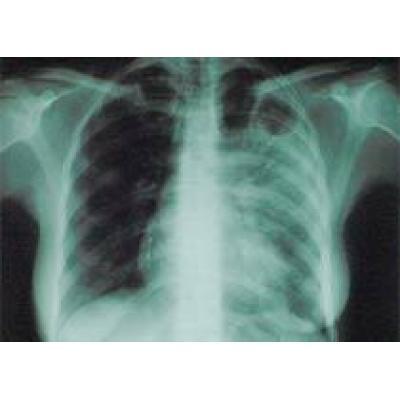 Итальянские власти всерьез озабочены случаем в больным туберкулезом мужчиной