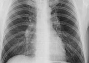 В челябинской поликлинике открылась спелеошахта для лечения заболевания лёгких