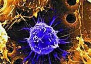 Стволовые клетки ускоряют течение рака
