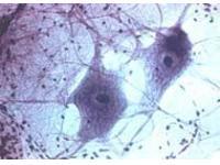 Американцы вырастили нервные клетки из жировой ткани