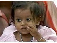 В Индии прооперировали девочку с 8 конечностями