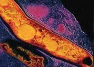 Южноафриканские власти ищут сбежавших туберкулёзников