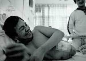 Китаец, разрезанный пополам 13 лет назад, учится ходить