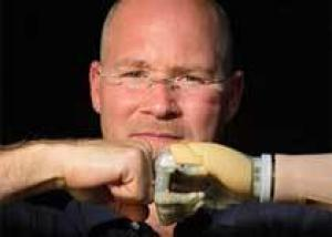 Британская компания принялась за массовый выпуск бионических протезов
