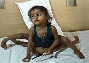 Отделенная от близнеца-паразита девочка начала передвигаться с помощью ходунков