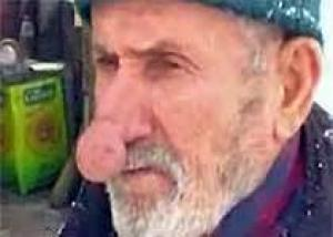 Найден человек с самым длинным носом