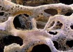 Инъекции тиреотропного гормона укрепляют кости