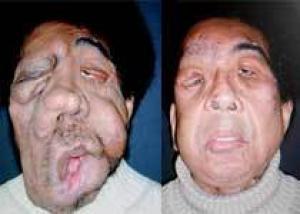 Врачи спасли изуродованного опухолью человека, пересадив ему лицо