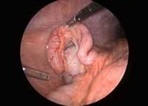 Американские хирурги впервые удалили аппендикс через влагалище