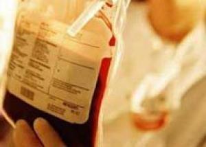 В России вводят американскую систему контроля качества донорской крови