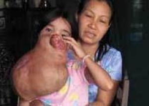 Врачи спасают 15-летнюю вьетнамку от семикилограммовой опухоли