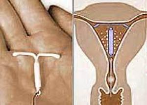 Внутриматочные противозачаточные средства снижает риск рака