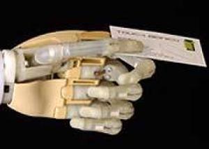 Бионическая рука выиграла престижный приз