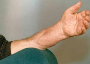 Немецкие хирурги пересадили пациенту обе руки
