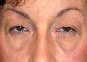 Обнаружена причина появления мешков под глазами