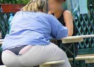 Американские хирурги провели операцию для лечения ожирения через влагалище