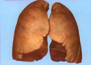 Ингаляционные кортикостероиды лечат не только легкие