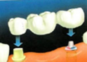 Имплантация зубов с помощью лазера не фантастика