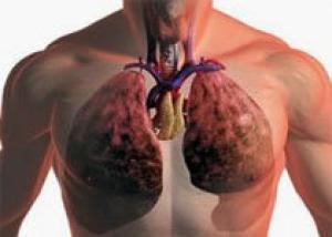 Найдено лекарство от рака легких