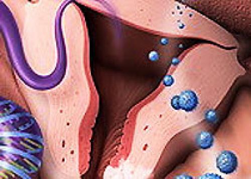 Treatment of cervical herbs cervical cancer