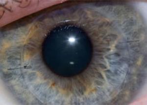 Стволовые клетки избавят от бельма на глазу