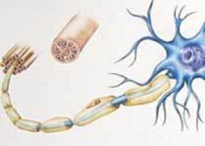 Появилось новое лекарство для больных рассеянным склерозом