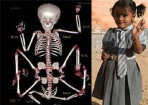 Перенесшая удаление четырех лишних конечностей девочка пошла в школу