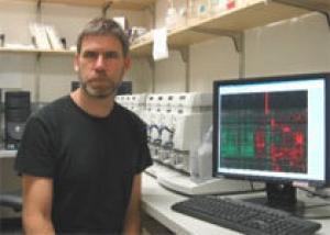 Расшифрован геном самой агрессивной опухоли мозга