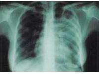 Постоянный стресс и плохое питание могут привести к заболеванию туберкулезом
