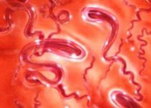 Как определить сифилис в домашних условиях