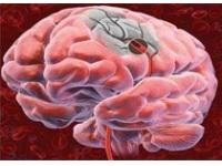 Новые подходы к профилактике инсульта