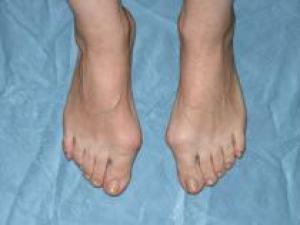 Как избежать вальгусной деформации стопы?
