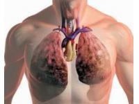 Рак легкого – онкозаболевание №1