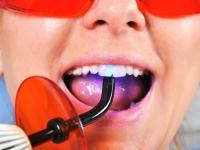 Клиника Telo's Beauty представила современные методы лечения кариеса и пульпита