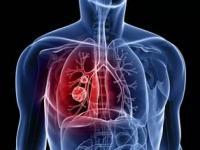 Примерно 20% пациентов, больных раком легкого с мутацией EGFR, могут остаться без персонализированной терапии